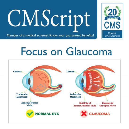 Glaucoma CMScript